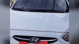 White Hyundai Accent 2017 for sale in Manila